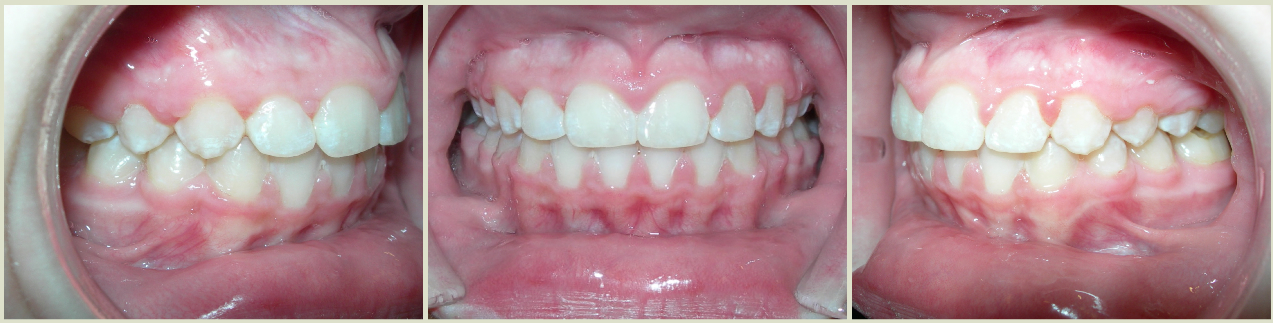 Posterior Crossbite FInal